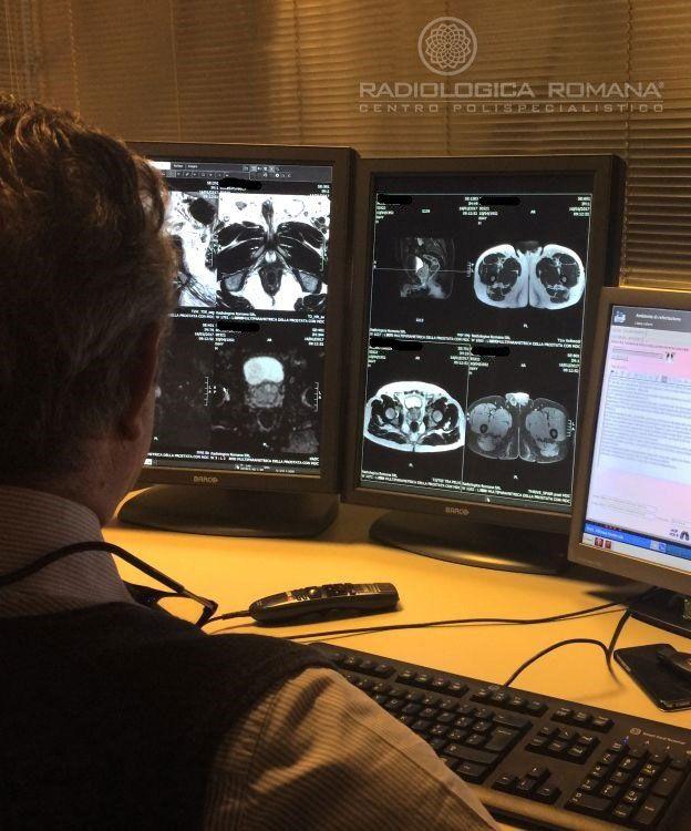 Risonanza Magnetica Multiparametrica/Biparametrica della Prostata