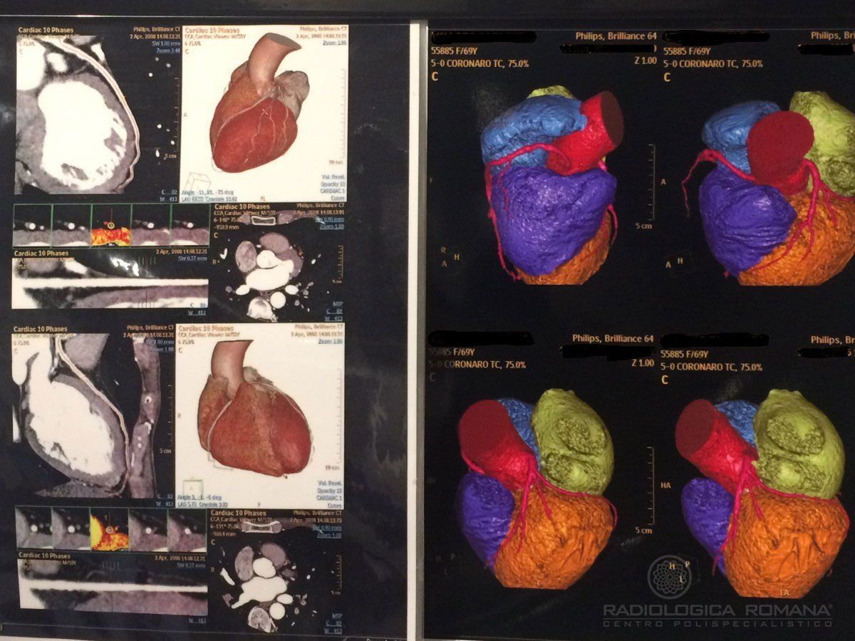 Cardio Tc – Tac Coronarica